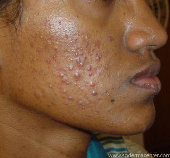 S P Derma Center Acne Treatment Results