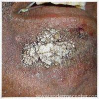 S P Derma Center Dermatosurgery Cosmetic Correction