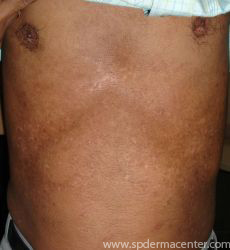 Vitiligo-After