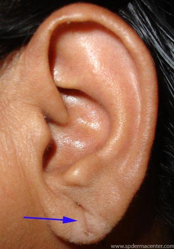 Ear-Lobe-Treated